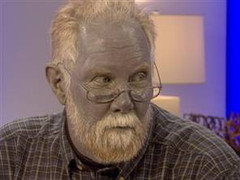 blue man with Argyria
